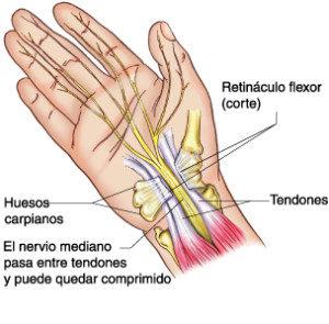 Síndrome-del-Túnel-Carpiano-300x295