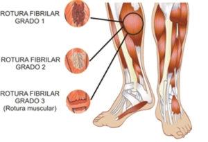 rotura fibrilar-madrid osteopata-RdP.Osteopata1