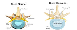 hernia_discal-3-rdp-osteopata-madrid