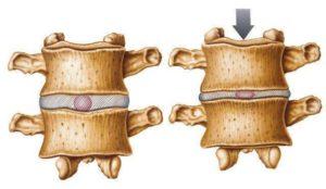 hernia_discal-4-rdp-osteopata-madrid